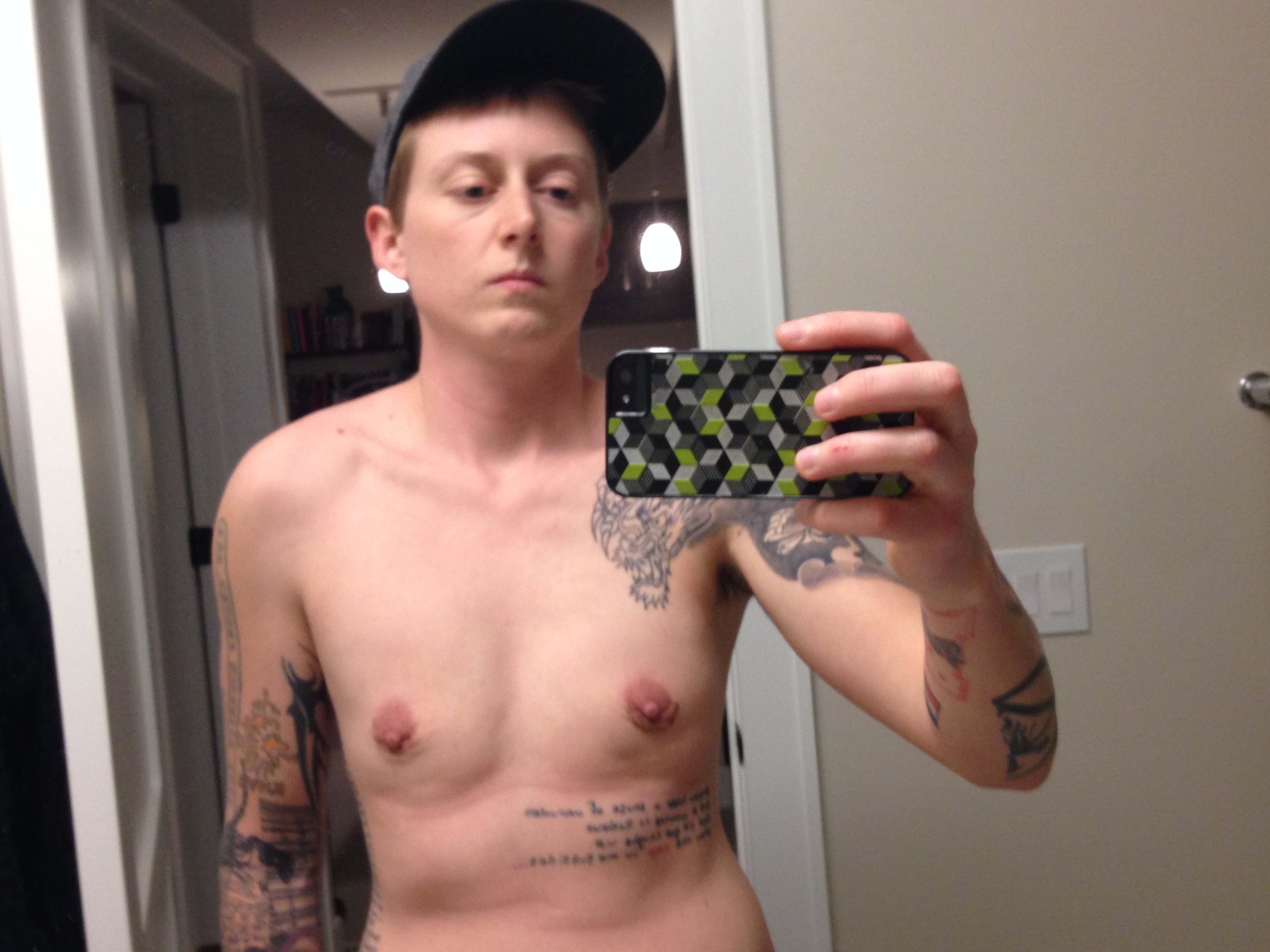 ... 16> Images For - Transgender Genital Surgery Before And After